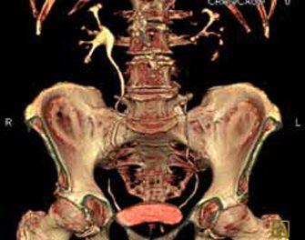 Tomografía computarizada helicoidal multicorte