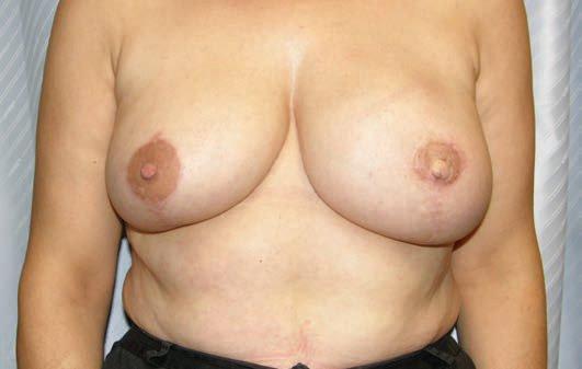 salud dosmil reconstruccion mamaria